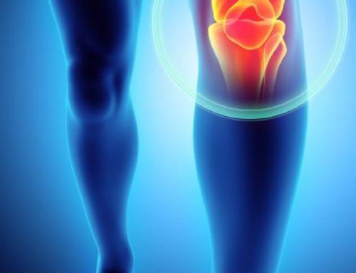 Lajšanje simptomov pri blagi do zmerni osteoartrozi